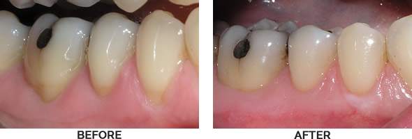 Gum Grafting Before and After Images